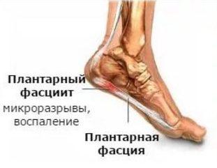 pyatochnaya shpora