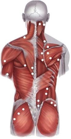 Мышечные триггерные точки и фокусированная пьезоэлектрическая волна как уникальная технология их диагностики и лечения